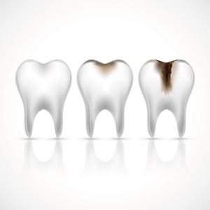 Root Canal Treatment in Bowral
